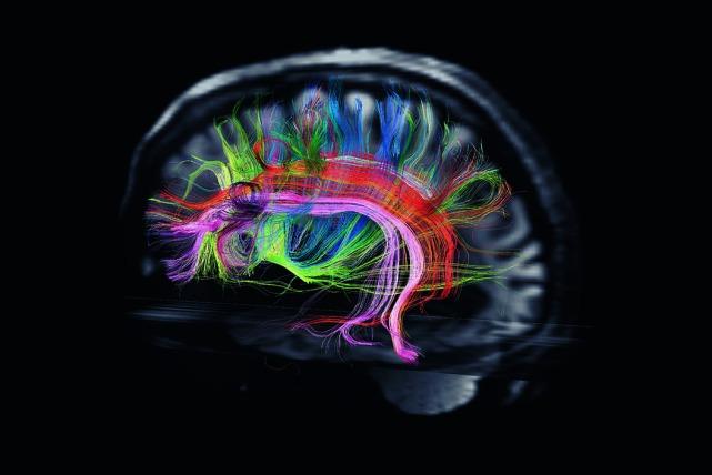 cerebro-1080x864 2
